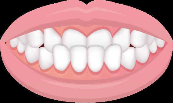 反対咬合/受け口/下顎前突症(かがくぜんとつしょう)